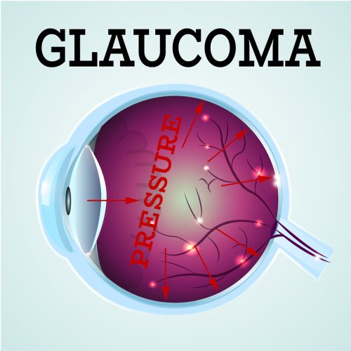 glaucoma - treatment